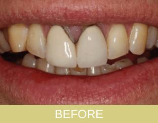 Dental crown patient before