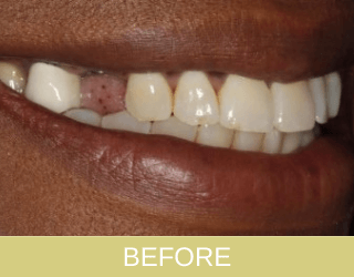 Dental Implant Patient Before photo