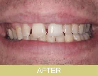 Ceramic Crown Patient After photo