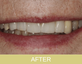 Implants and bridges to replace denture after photo