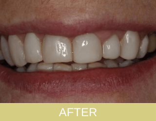 composite rec-contouring and bonding after photo