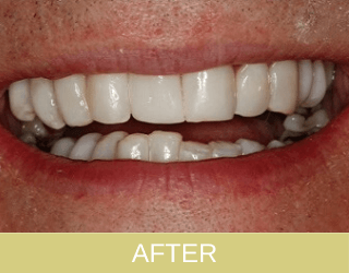 composite bonding and re-contouring after photo
