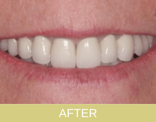 Implant and crowns after photo