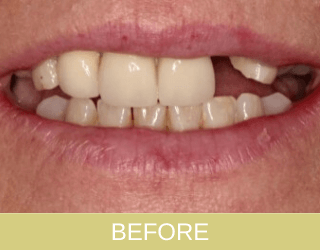 Implant and crowns before photo