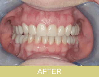 Implants composite filling materials and ceramic crowns after photo