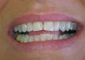 veneers-01-before