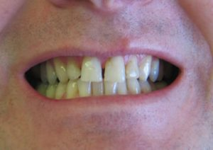 veneers-03-before