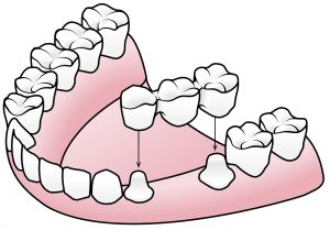 Dental-Bridge-Example