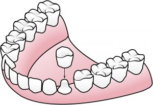 Dental-Crown-Example