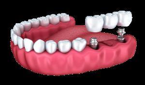 three-tooth-bridge-implant