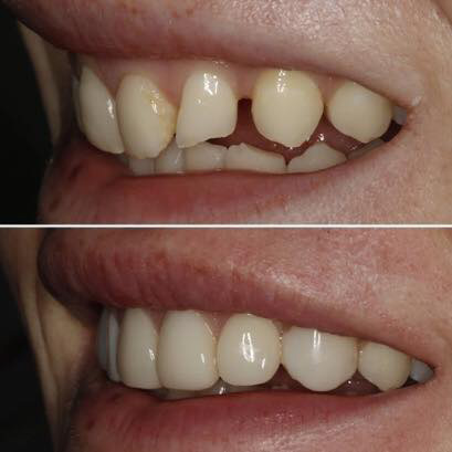 Cosmetic-bonding-before-and-after-photo