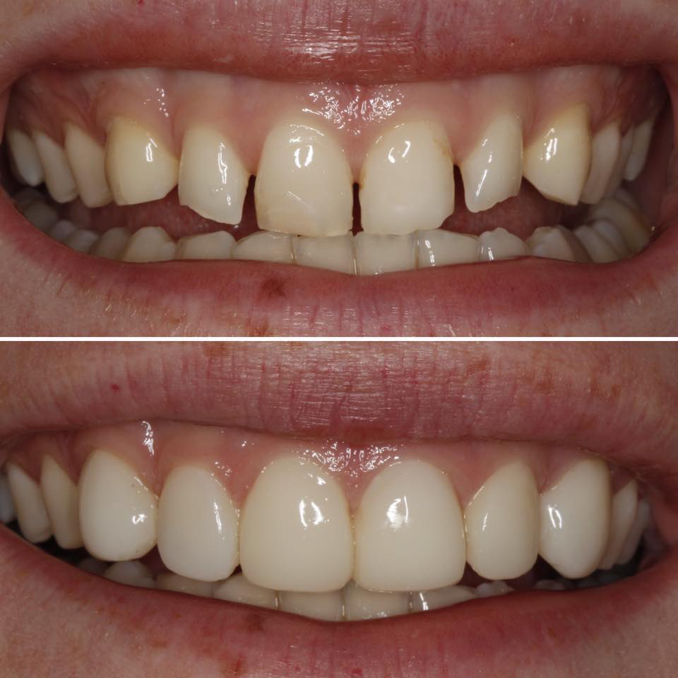 bioclear-bonding-before-and-after-photo